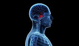x-ray of a brain aneurysm